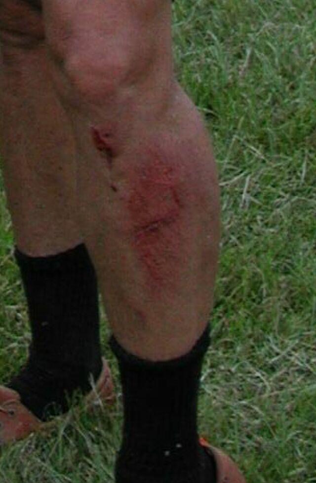 Leg used for a brake!!